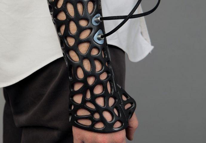 osteoid cast